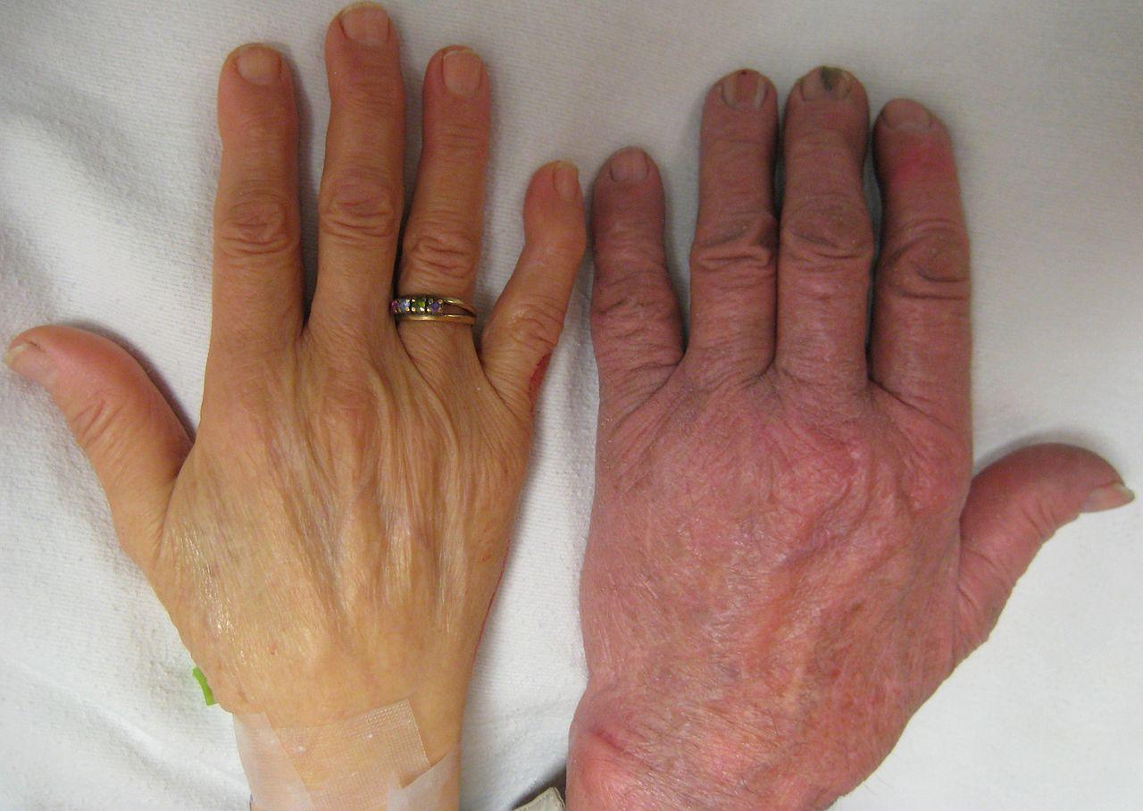 anemia causes symptoms and treatment booboonecom