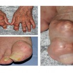 Gout, Gout treatment