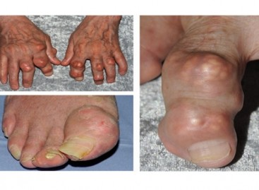 Gout Causes, Treatment, Prevention