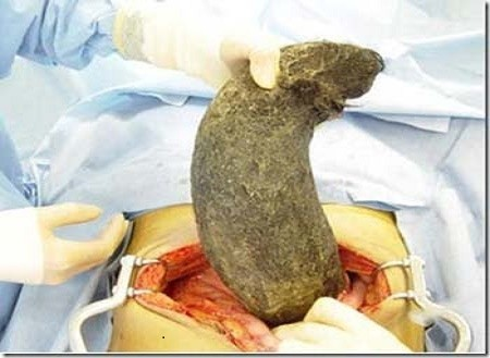 10 Pound Hairball in Woman Stomach