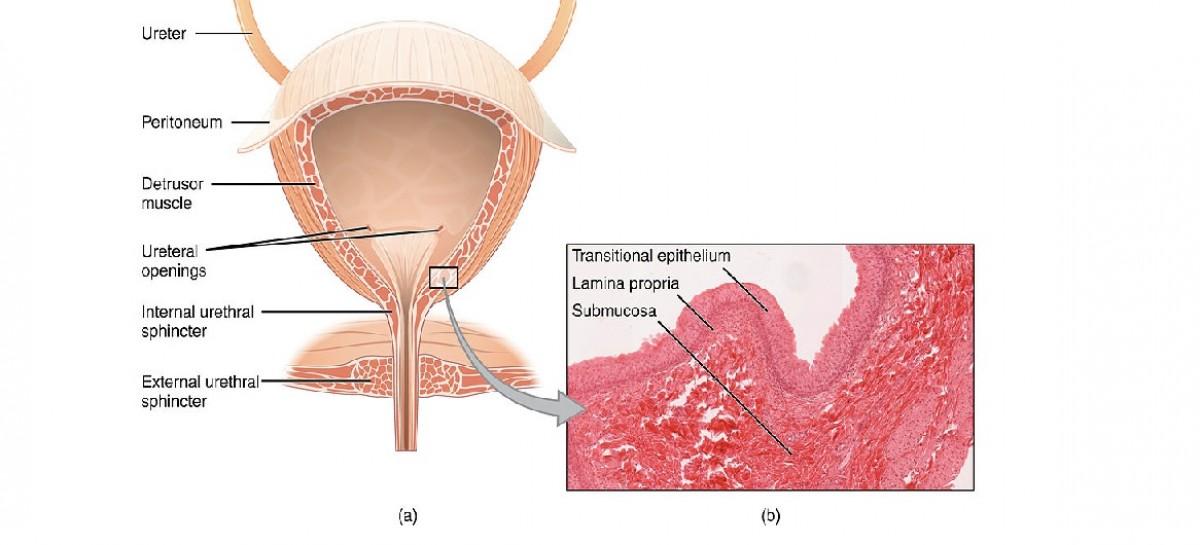 Interstitial Cystitis (+ 5 Natural Ways to Help Relieve Bladder Pain)