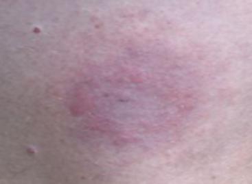 Lyme Disease Symptoms, Treatment, Prevention