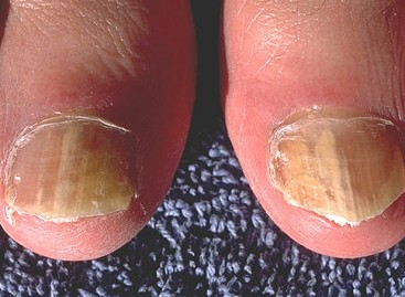 Nail Fungus Treatment, Prevention and More