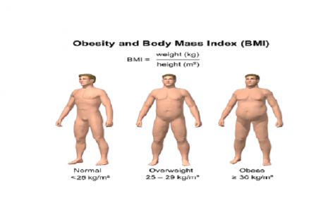 Obesity Treatment and Weight Loss Program