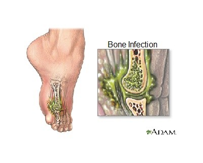 Osteomyelitis Treatment and Prevention - Booboone.com