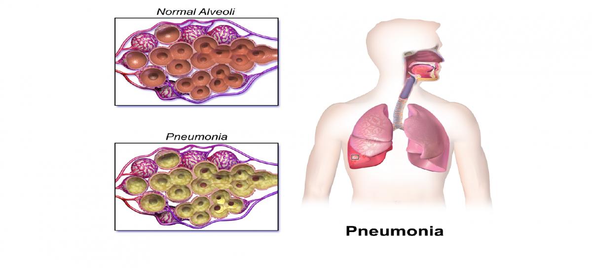pneumonia contagious Adult
