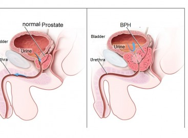 Prostate Disorders Treatment and Prevention