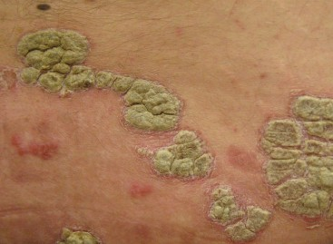 Psoriasis Causes, Symptoms, Treatment, Prevention