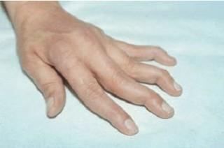 Rheumatism, rheumatic disorder