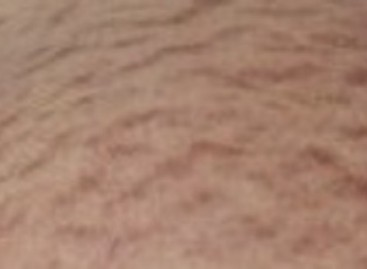 Stretch Marks Treatment and Prevention