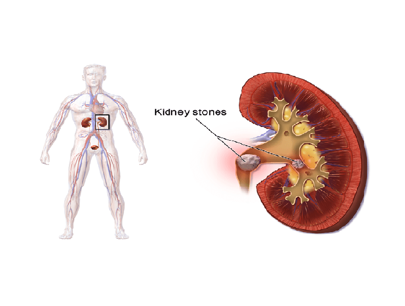 Kidney Stone Treatment, Prevention and Diet - Booboone.com