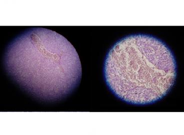 Asbestos Exposure and New Mesothelioma Treatment