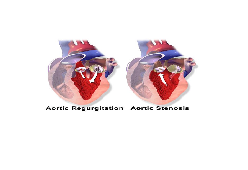 Aortic Insufficiency