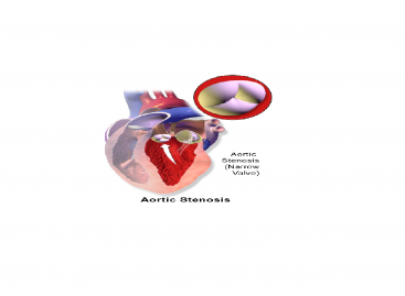 Aortic Stenosis Symptoms, Treatment and Prevention