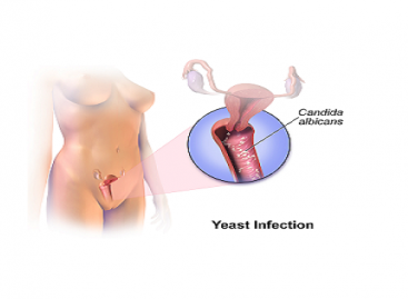 Yeast Infection Symptoms, Treatment and Prevention