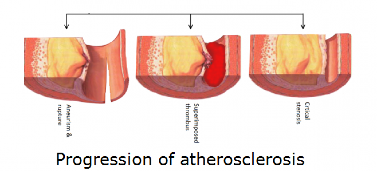 cholesterol and atherosclerosis relationship