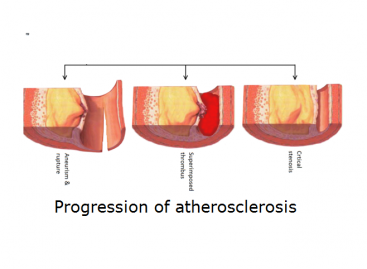 Atherosclerosis Treatment and Prevention