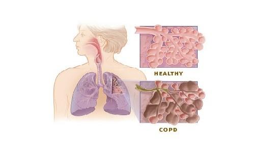 COPD, COPD Treatment
