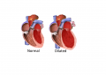 Cardiomyopathy, Cardiomyopathy treatment