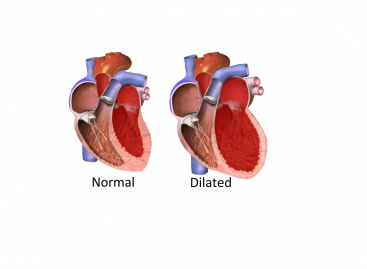 Cardiomyopathy Treatment and Prevention