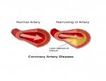 Coronary Heart Disease, coronary artery disease