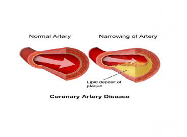 Coronary Heart Disease Symptoms, treatment, Prevention
