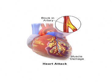 Heart Attack Warning Signs, Treatment, Prevention