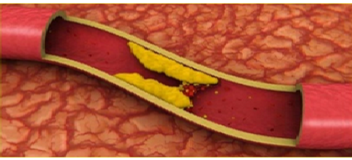 High Blood Cholesterol Treatment and Prevention