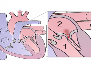 Mitral Regurgitation Treatment and Prevention