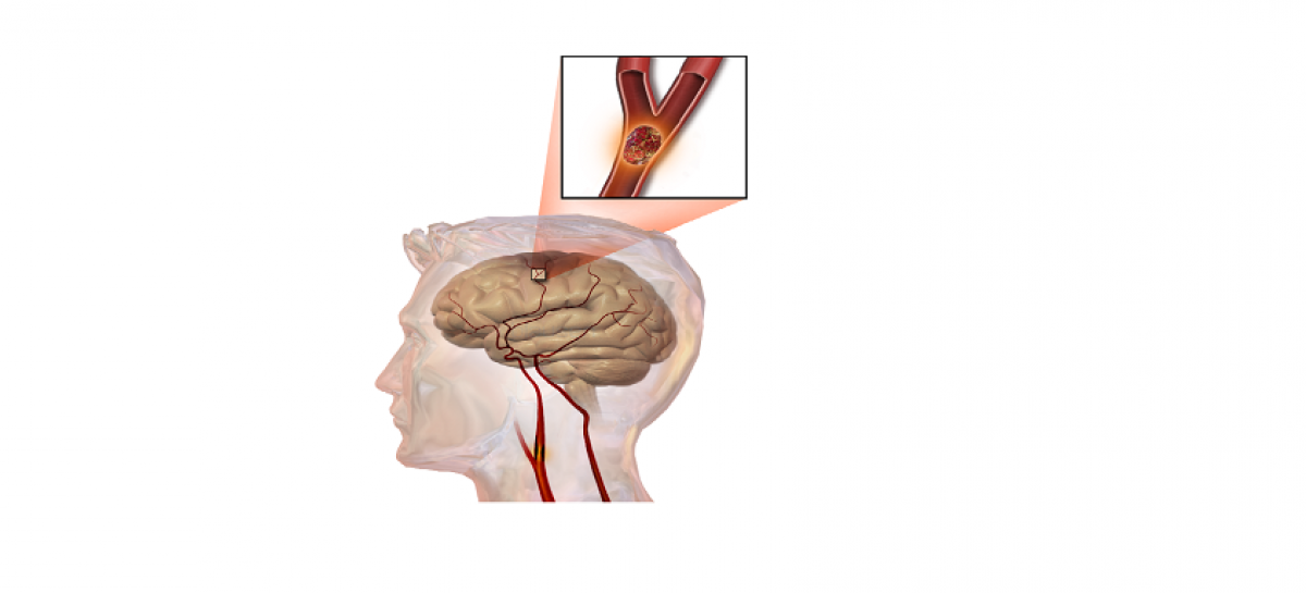 Stroke Treatment, Prevention, Diet