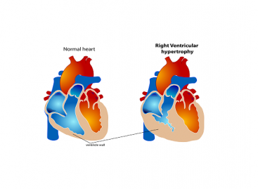 Congenital Heart Defect Treatment and Prevention