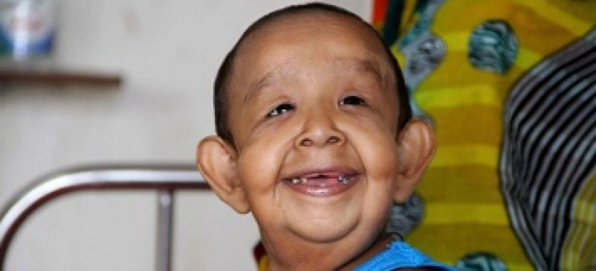 4 year old boy has the appearance of an old man