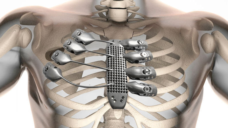 Artificial ribs and sternum