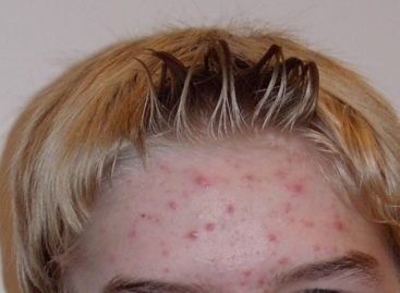 Get rid of acne scars and Pimples completely in just 30 days