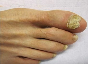 This Nail fungus treatment Is the answer to your prayer