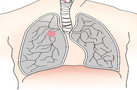 Lung Cancer Symptoms and Tips to detect Them Early