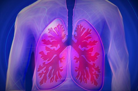 Lung cancer survival rate s and Tips to improve your survival