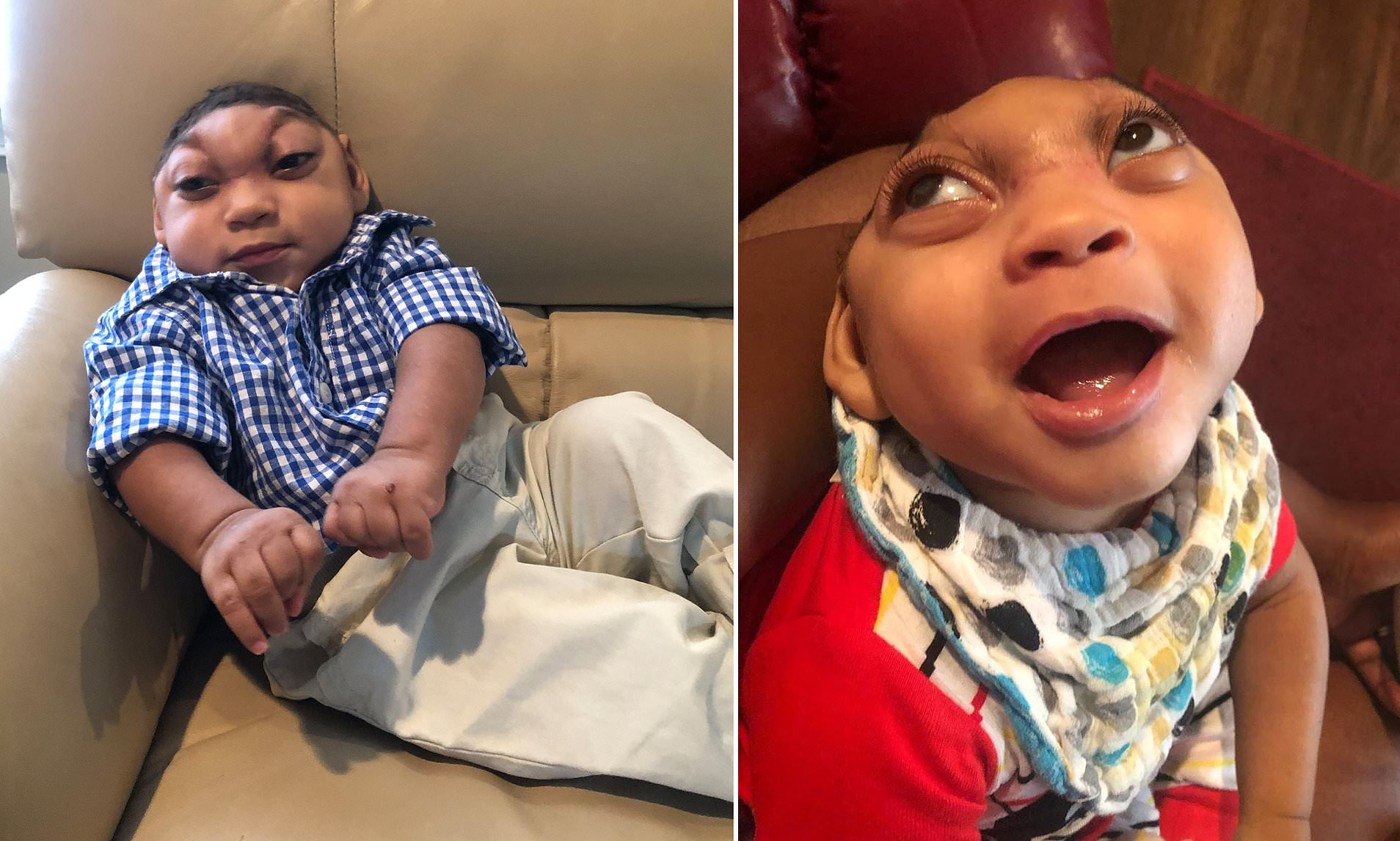 Baby Born with a Tiny Head and Part of BRAIN sticking