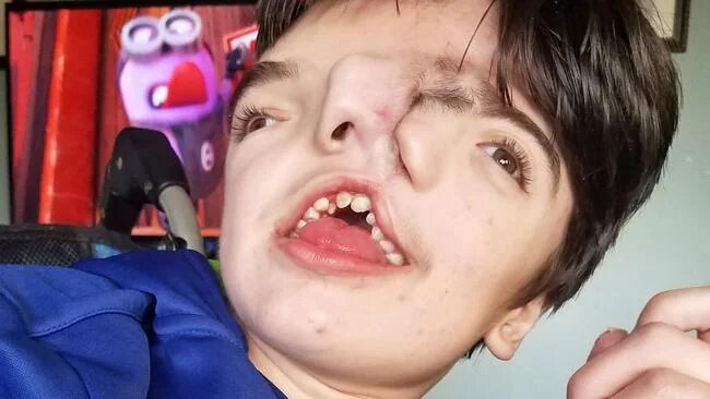 Miracle Boy Born with 'Two Faces'