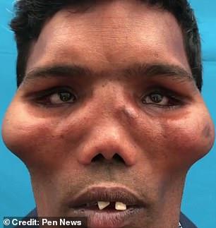 Suresh Lion Face Syndrome