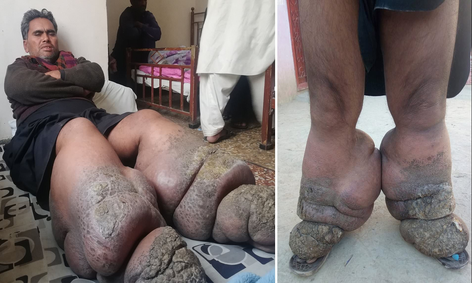 Man' Legs Ballooned to 110lbs Due to Worm Infection