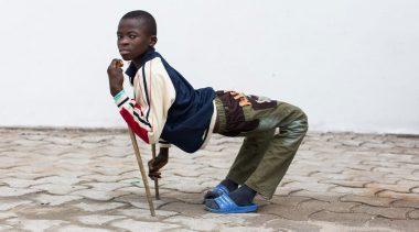 African Boy Legs Bent Backward