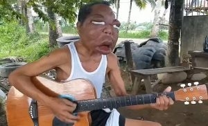 Filipino man's face swells to 3 times its normal Size