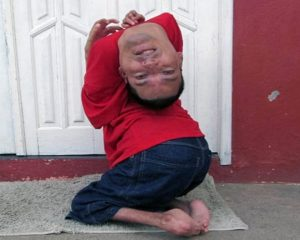 Man with Upside-down Head