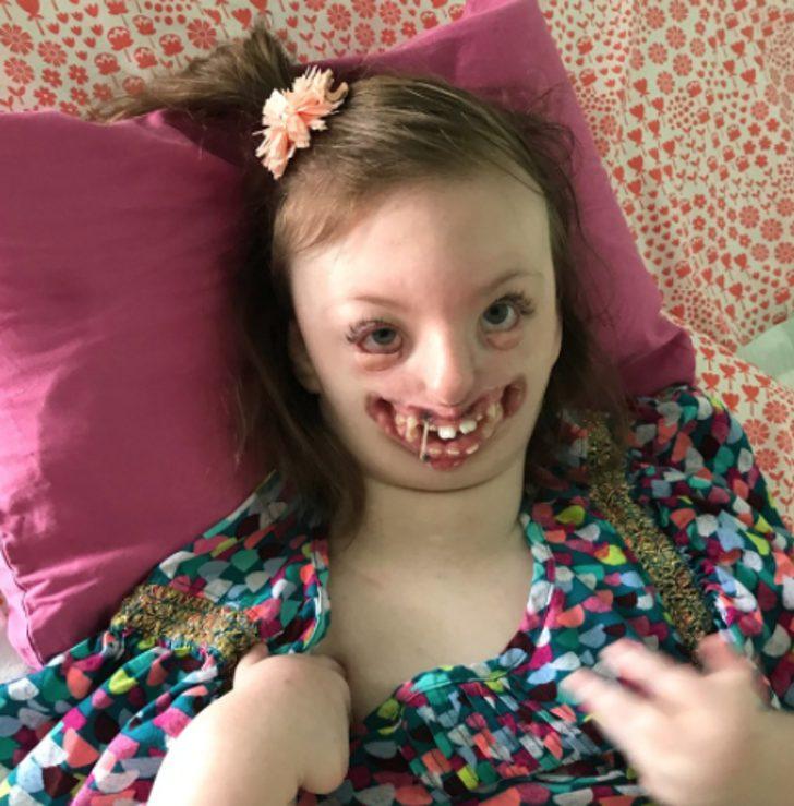 Sophia Facial Deformities