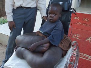 Ugandan Boy Whose Legs Weigh More Than He Does