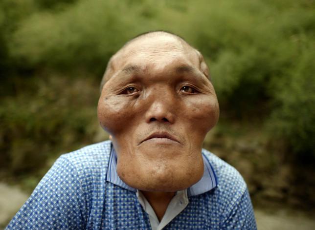 Man With Alien-like Facial Deformities