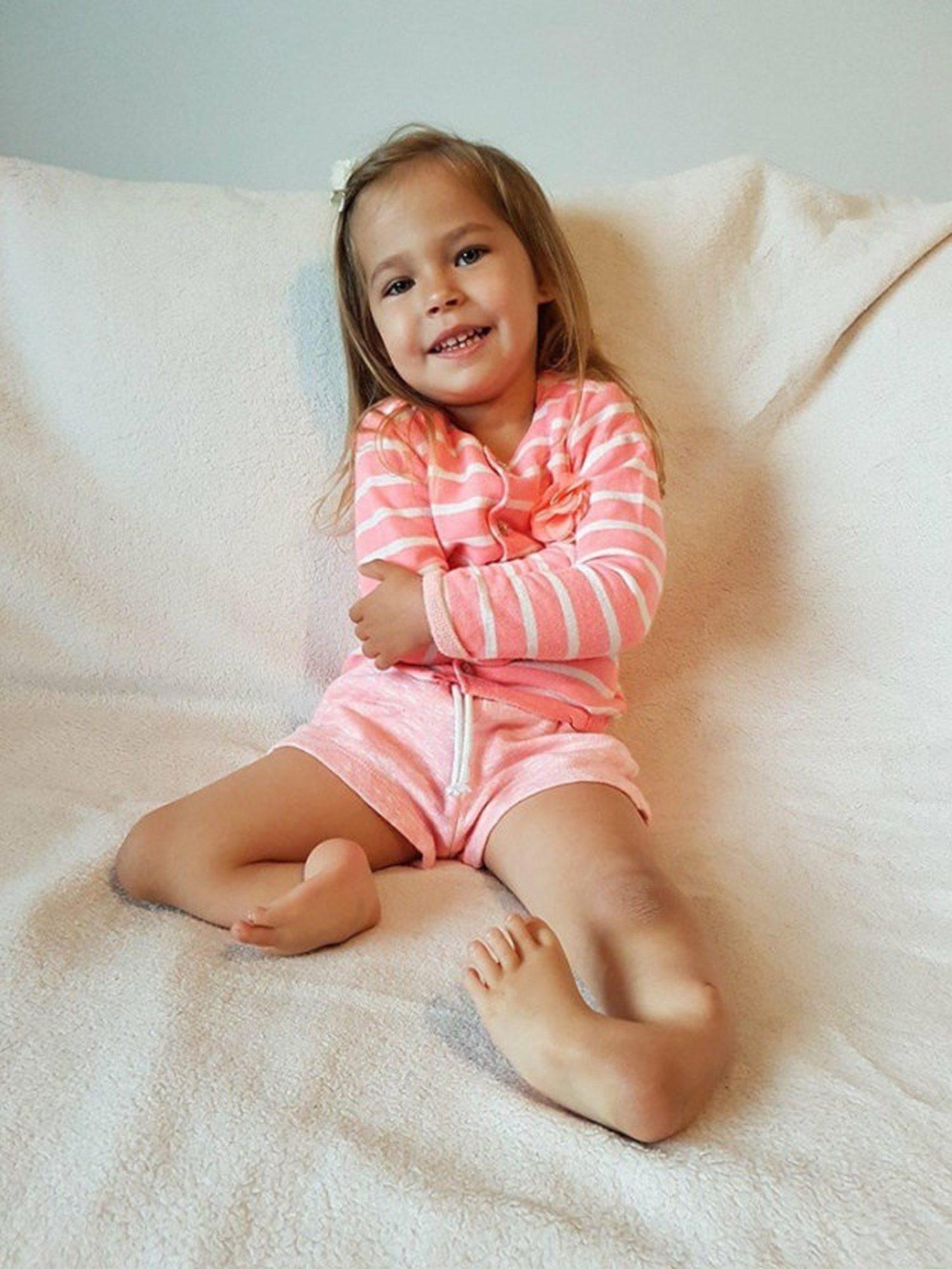 Girl Born with 'Backward' Legs