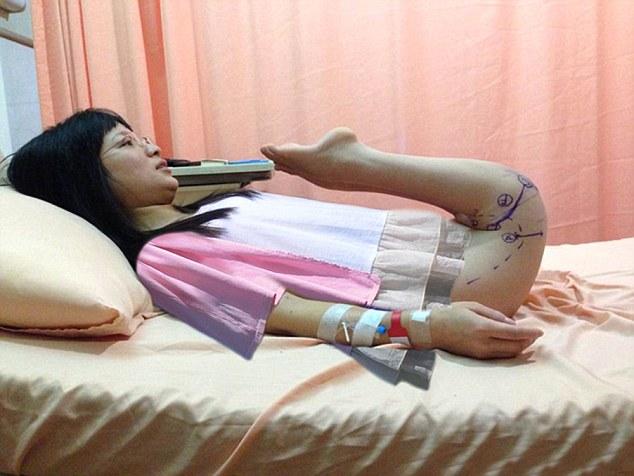 Woman Born with Backwards Legs