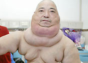 Chine Man with 15kg Neck Tumor